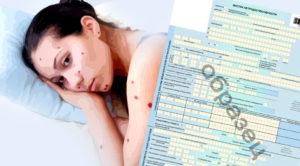 Сколько дней нужно быть дома при ветрянке: периоды развития болезни, сколько длится у взрослых и детей, больничный лист (фото, видео)